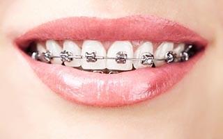 best orthodontist in abu dhabi
