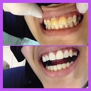 Teeth Whitening Abu Dhabi
