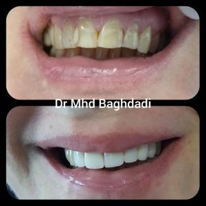 Cosmetic Dentistry Abu Dhabi