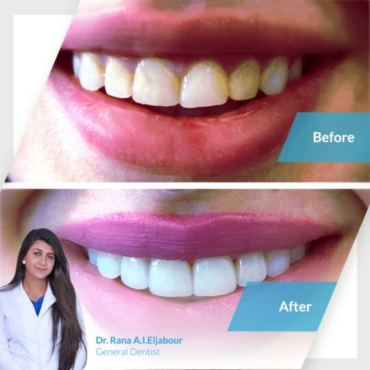 Zoom Whitening with Dr. Rana